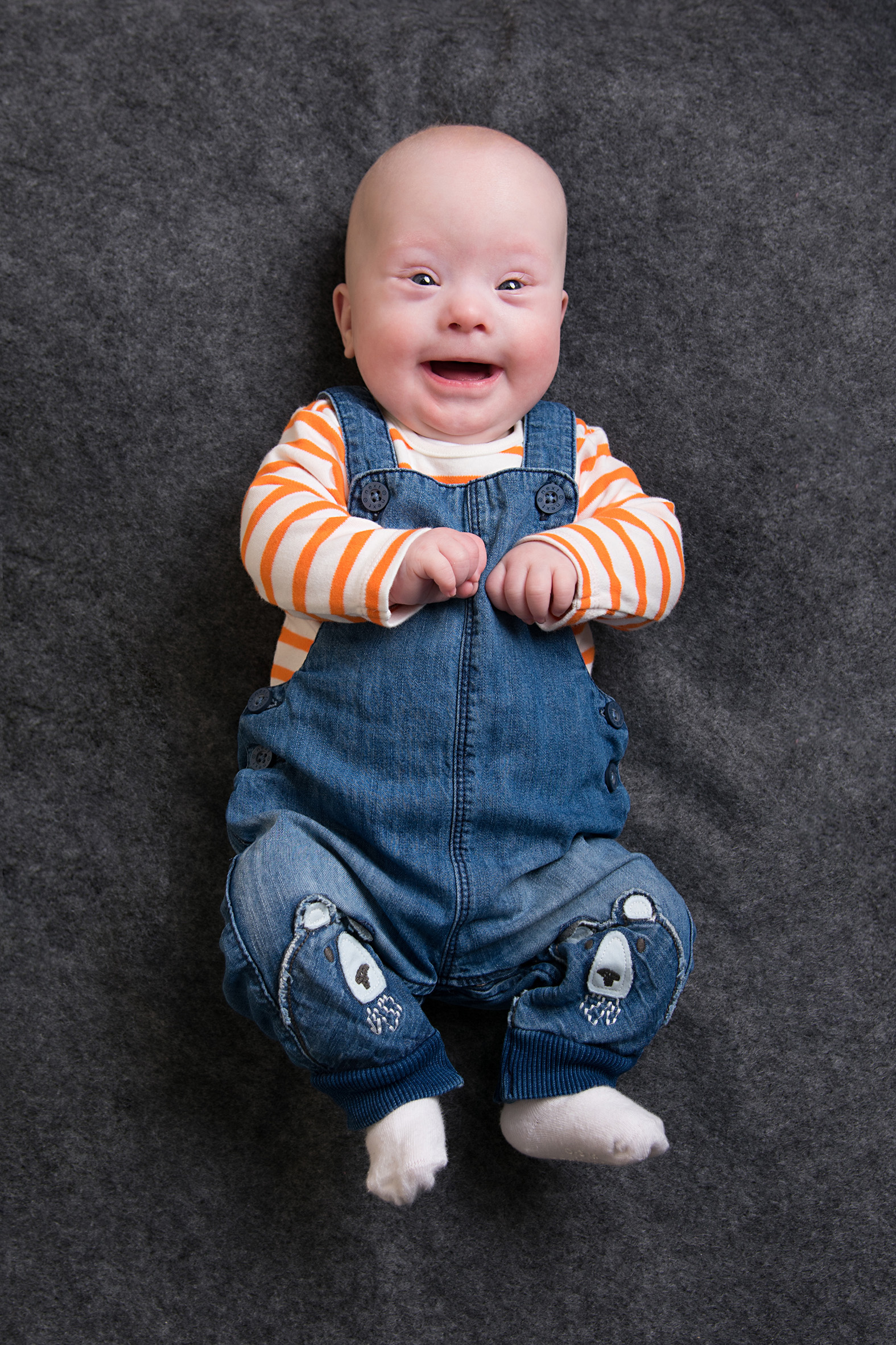 Brody, Down Syndrome, Zebedee Management