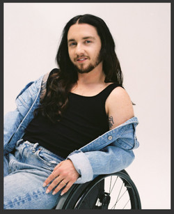 Julian, Zebedee Management, disabled, model agency, disability, differences, Man (65)