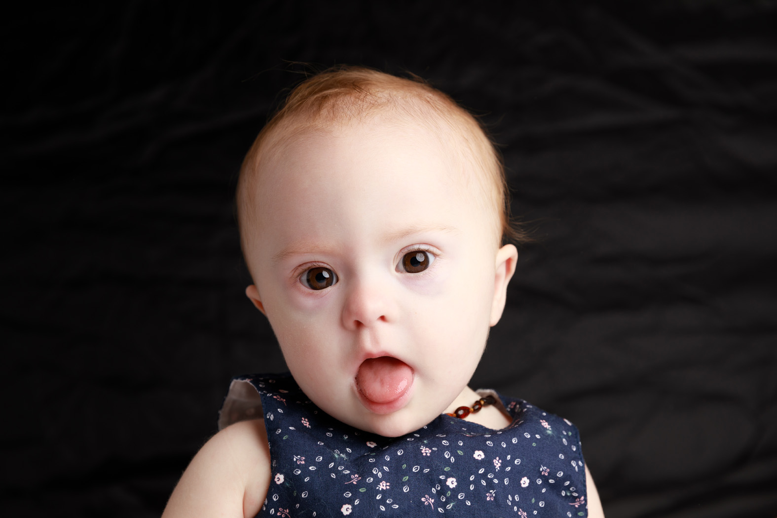 Sarah, Down Syndrome, Zebedee Management