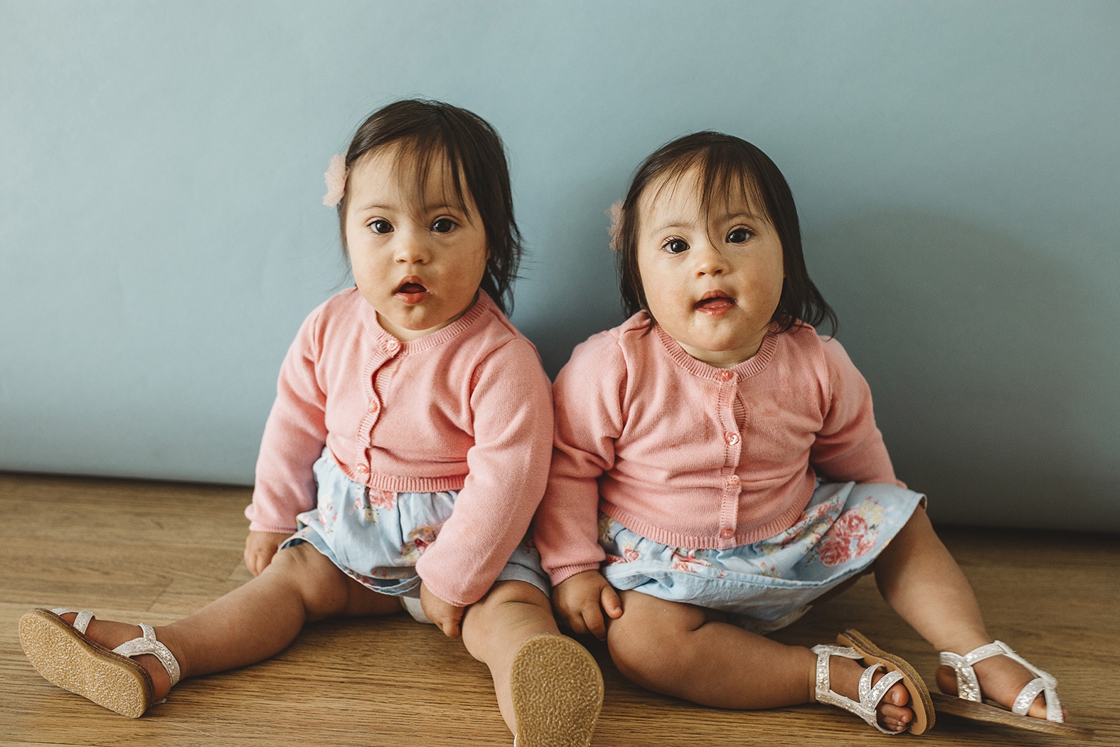 Hannah and Rachel, Down Syndrome, Zebedee Management, disabled, model agency, disability, babies 03