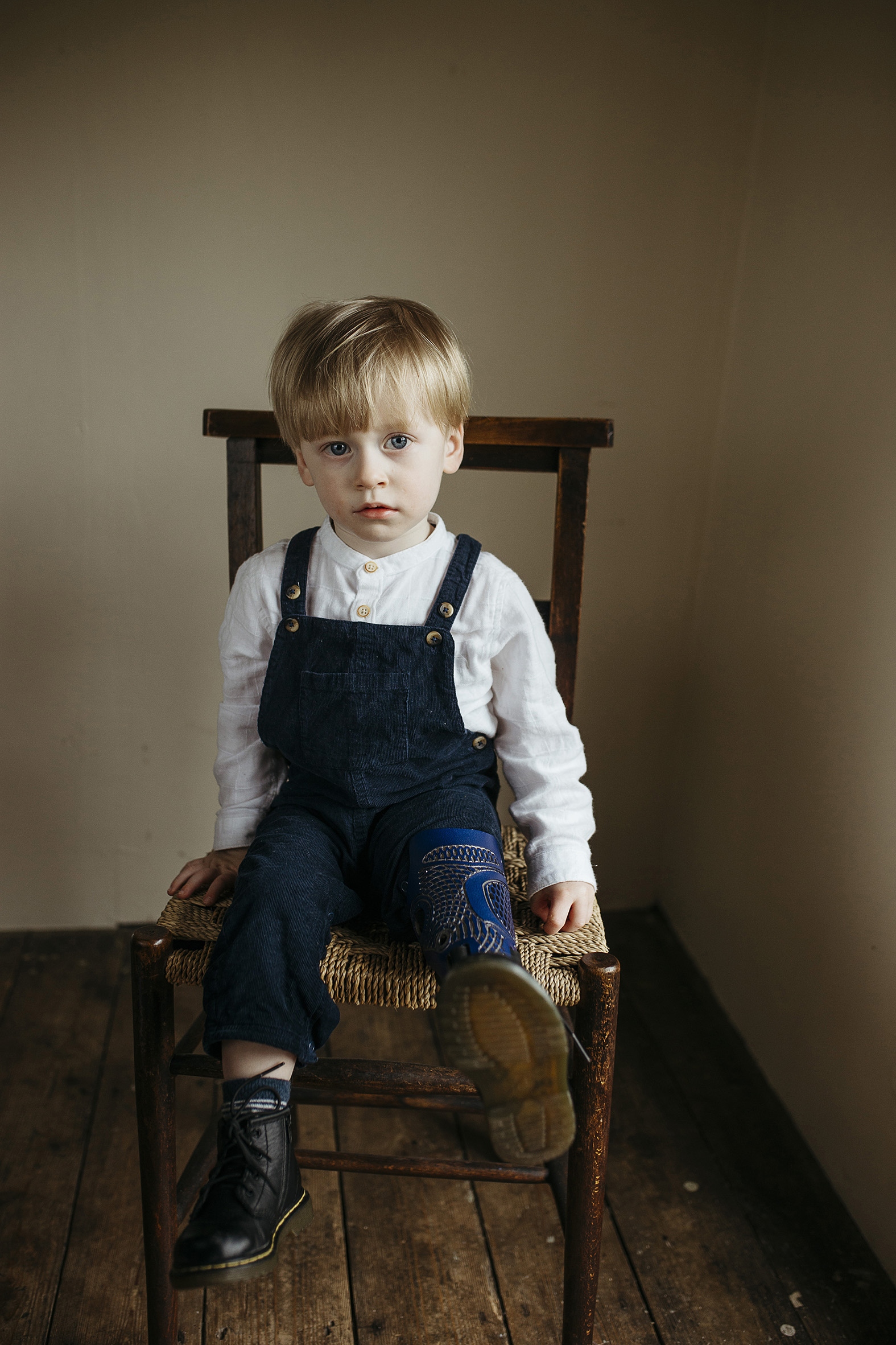 Oliver, amputee, one leg, Zebedee Management, disabled, model agency, disability, body confidence, b