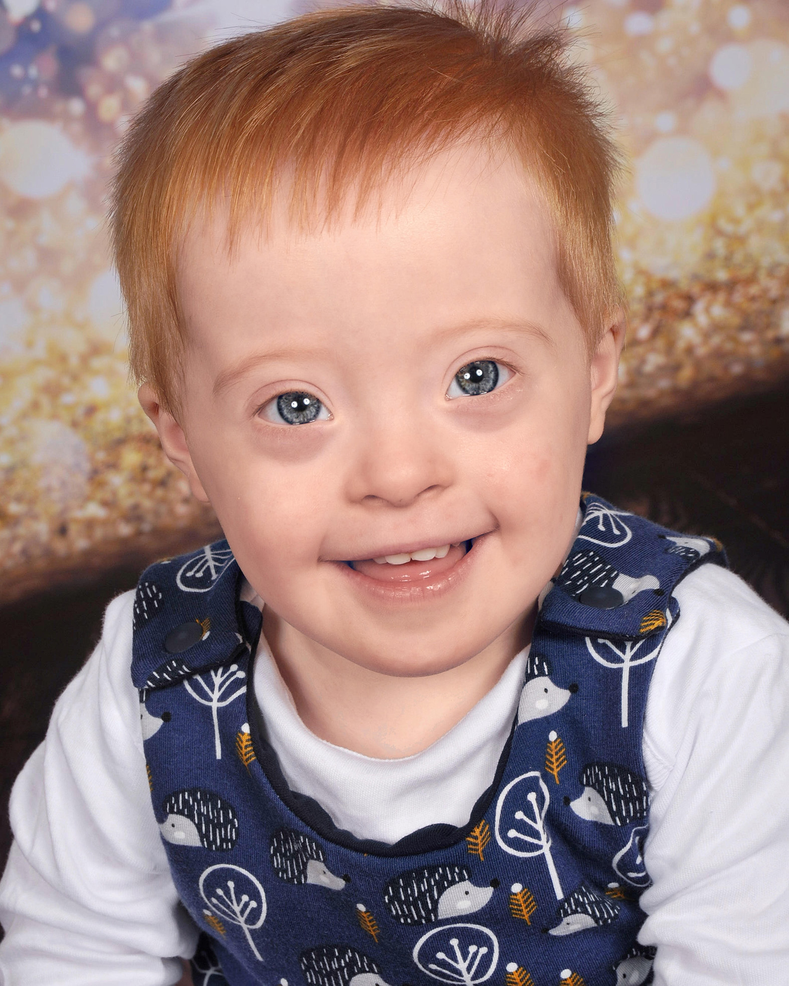 Rafferty, Down Syndrome, Zebedee Managem