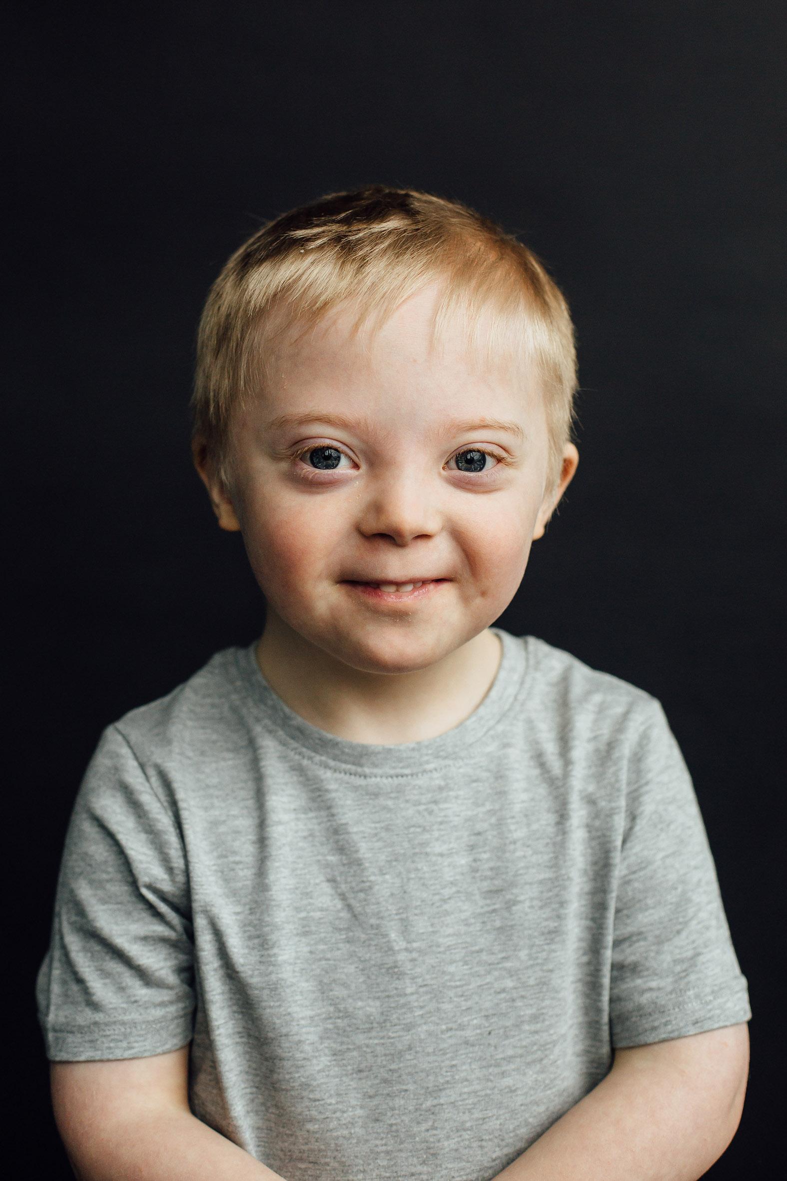 Jensen, Down Syndrome, Zebedee Managemen
