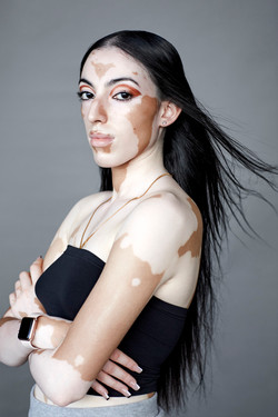 Jasroop, Zebedee Management, disabled, model agency, disability, differences, Woman (1)
