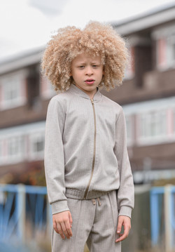 Elijah, Albinism, Zebedee Management, disabled, model agency, disability, Boy (2)