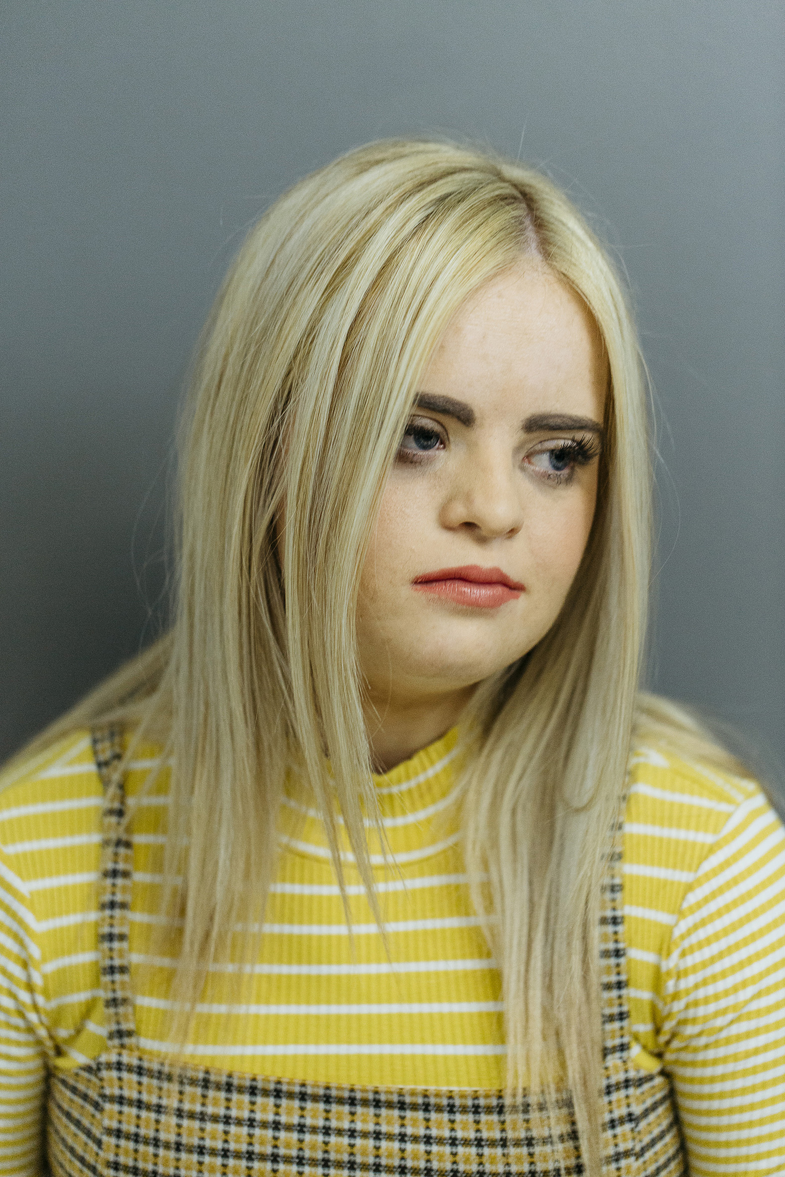 Kate, Down Syndrome, Zebedee Management,