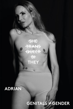 Adrian, trans-non binary, Zebedee Management, disabled, model agency, disability (9)