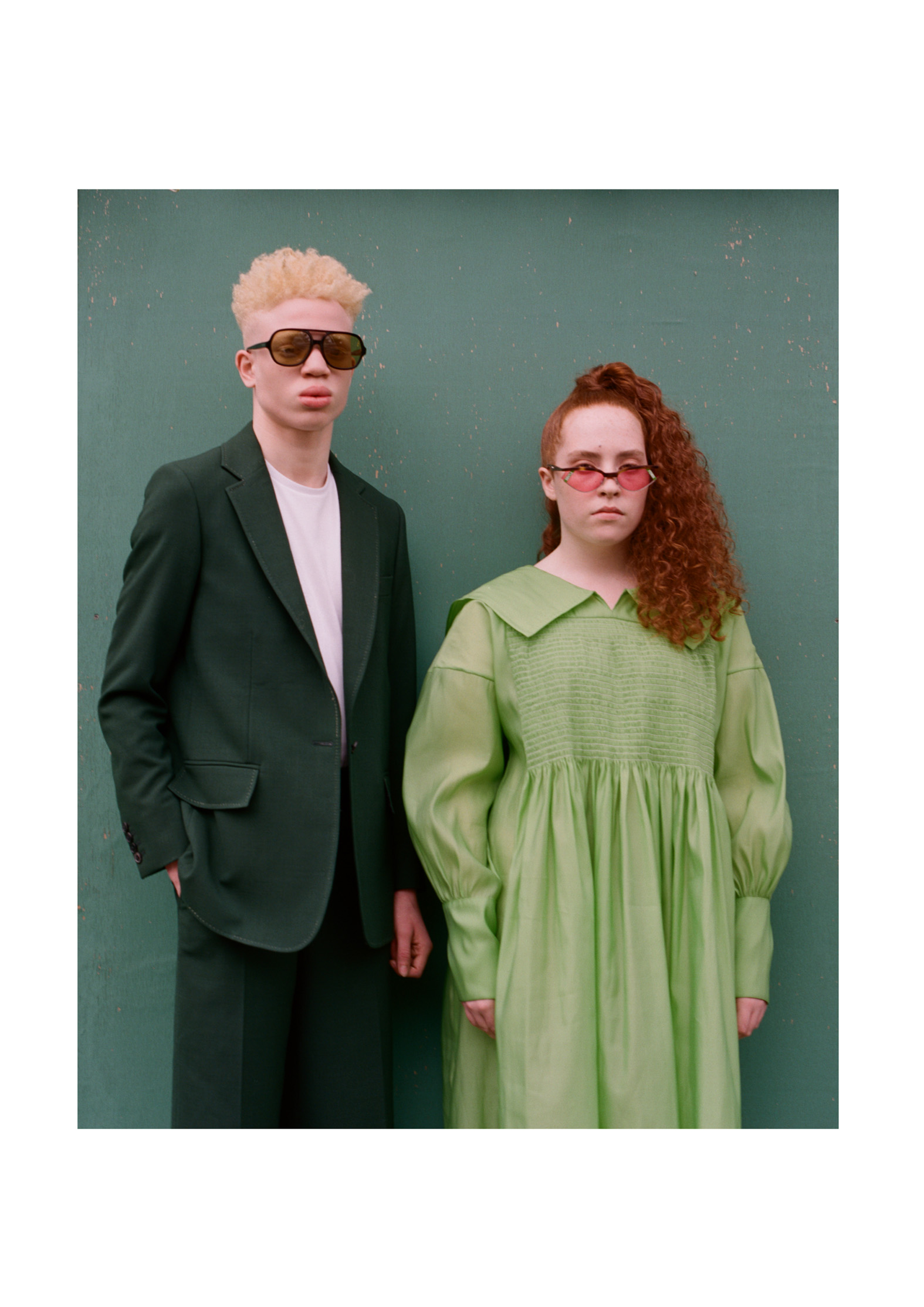 Shem, Ocular Albinism, Zebedee Managemen