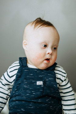 Lenny, Down Syndrome, Zebedee Management