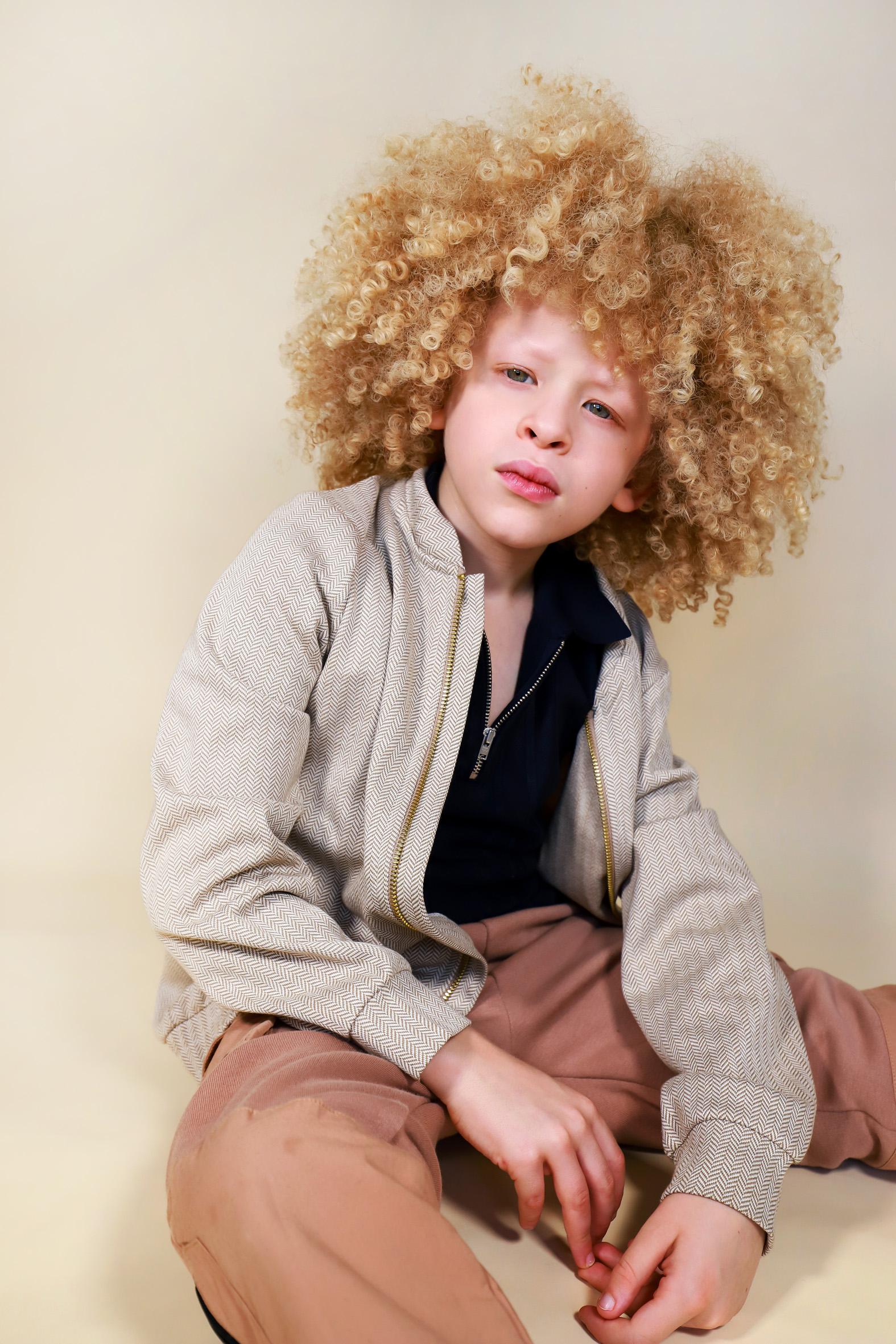 Elijah, Albinism, Zebedee Management, di