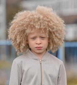Elijah, Albinism, Zebedee Management, disabled, model agency, disability, Boy (5)