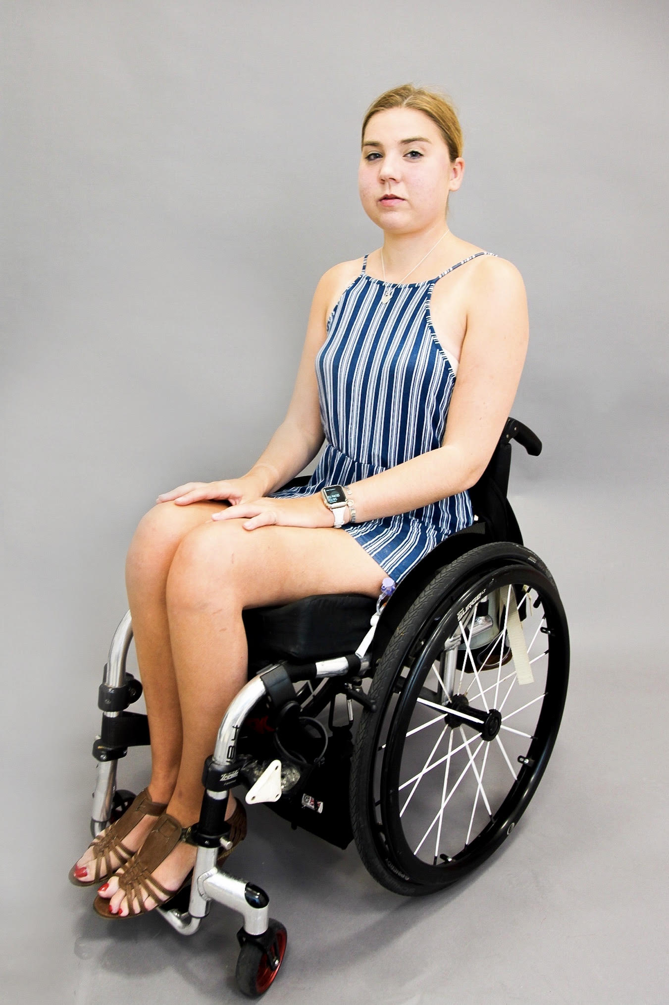 Ruth, Ehlers-Danlos Syndrome, Zebedee Ma