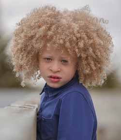 Elijah, Albinism, Zebedee Management, disabled, model agency, disability, Boy (6)
