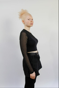 Nan, Zebedee Management, disabled, model