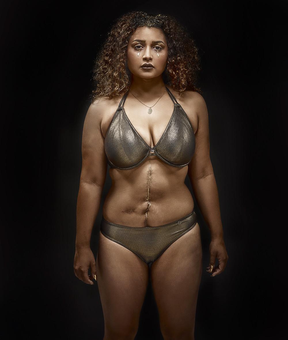 #effyourbeautystandards #beauty #scars #curves #disability