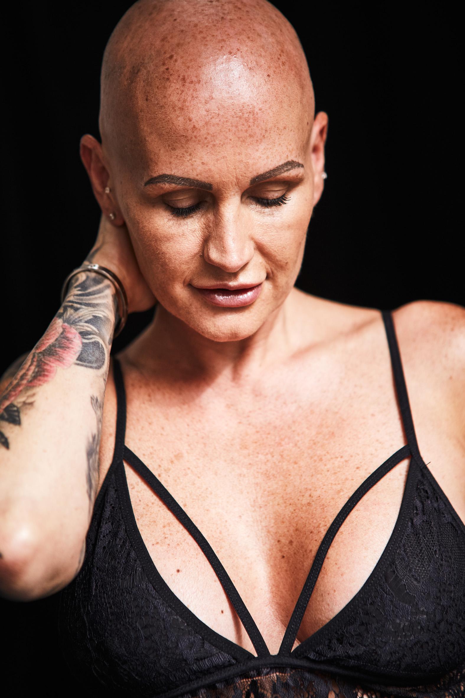 Victoria, Alopecia Universalis, Zebedee