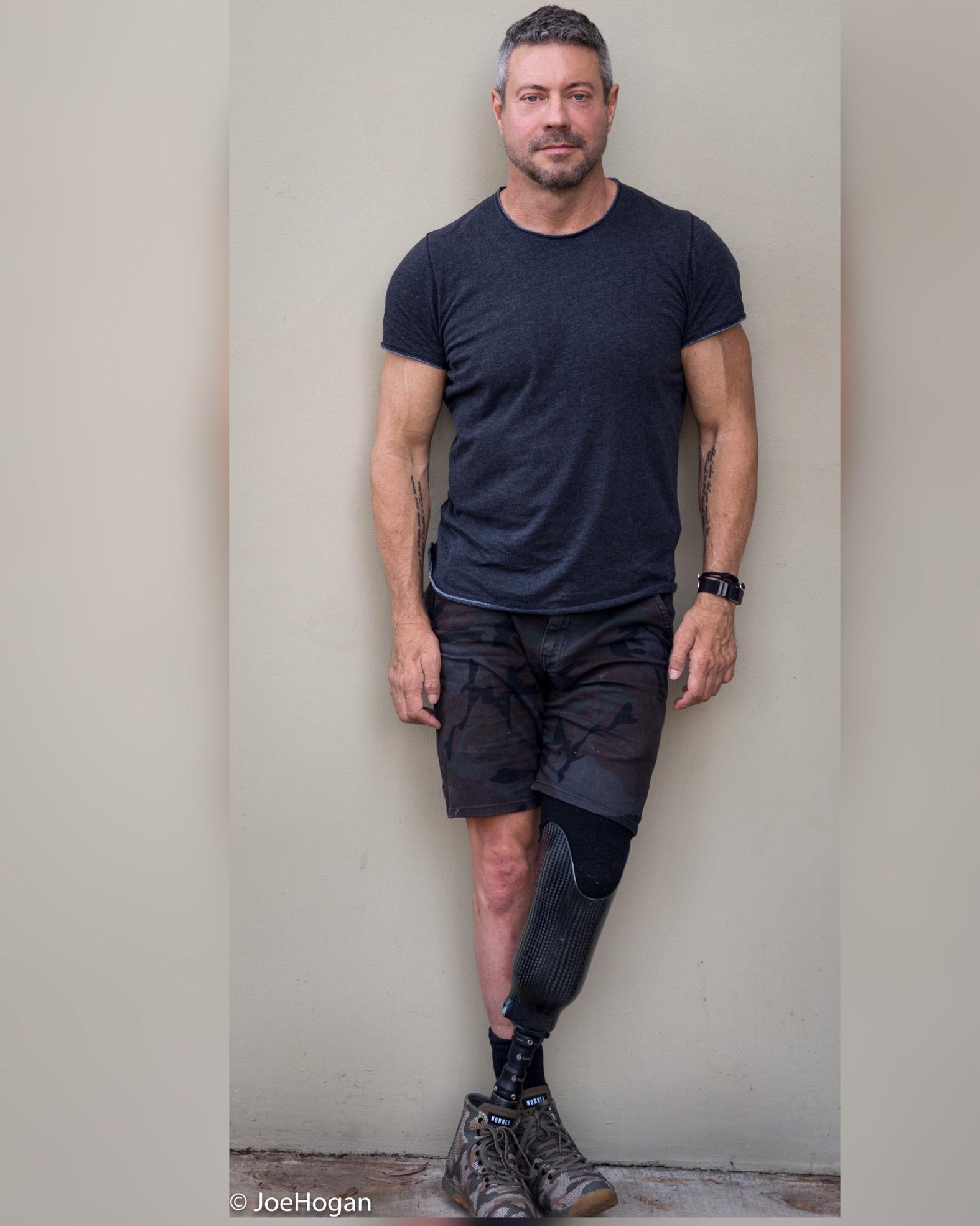 Joe, Zebedee Management, disabled, model