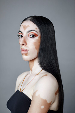 Jasroop, Zebedee Management, disabled, model agency, disability, differences, Woman (2)