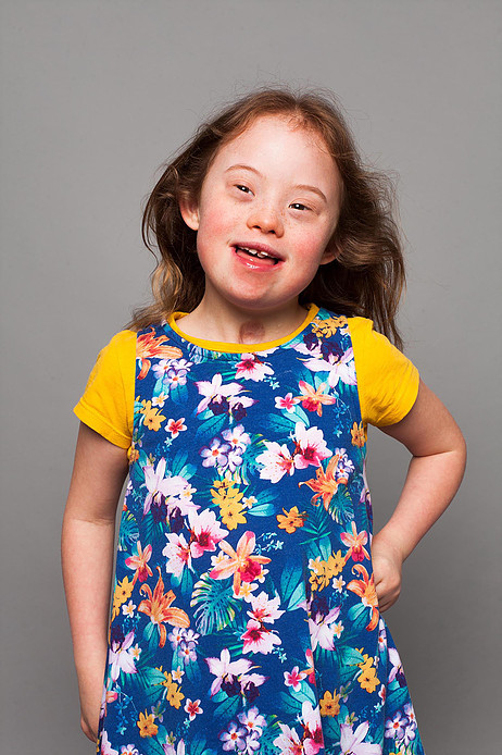 #downsyndrome #downsyndromemodel #disabledmodel #modelwithdisablities #disablityawareness #nothingdownaboutit #childmodel #model #modelagency #differentlyabledmodel #bodyconfidence #bodypositive #scars #scar