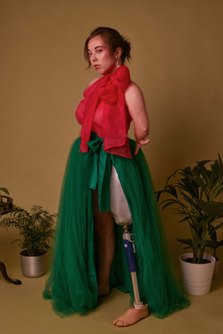 Jessica, Zebedee Management, disabled, model agency, disability, Woman (1)