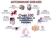 autoimmune%20diseases_edited.jpg