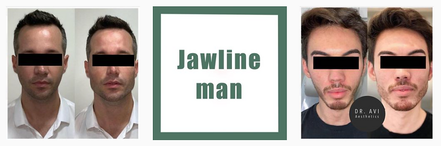 Dr.-Avi-Aesthetics-jawline-man.png