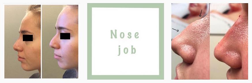 Dr.-Avi-Aesthetics-nose-job.png