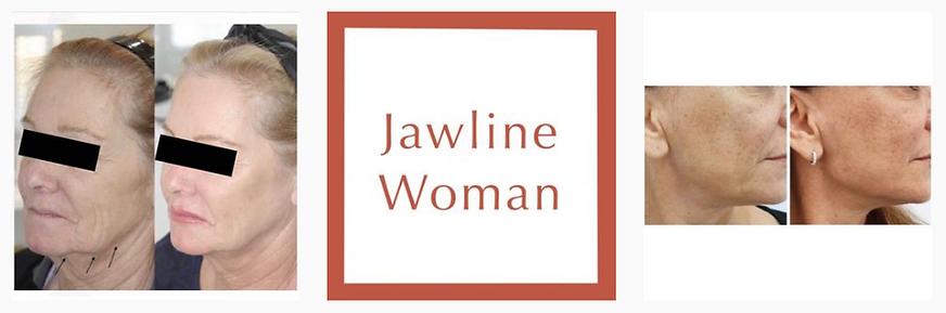 Dr.-Avi-Aesthetics-jawline-woman.png