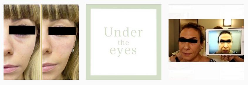 Dr.-Avi-Aesthetics-eyes.png