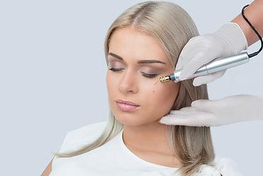 Fibroblast Eye Lift Treatments in Bracknell, Berkshire