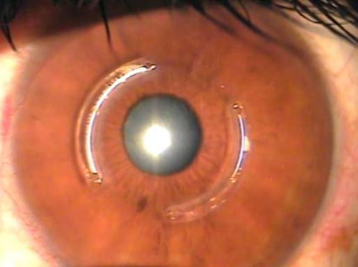Implante de Anel para Ceratocone