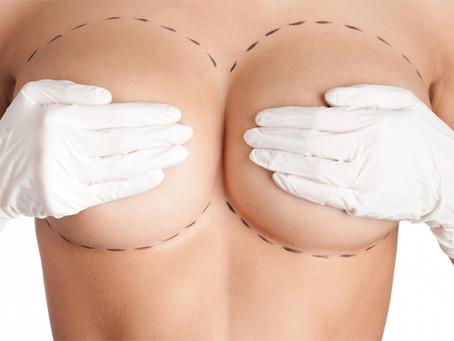 As 10 dúvidas mais frequentes sobre prótese de silicone