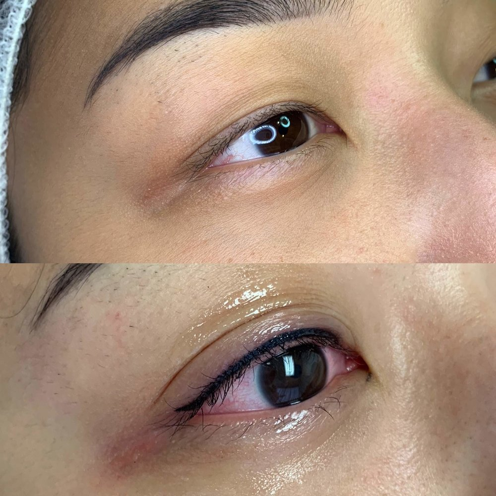 Liner - Before & After
