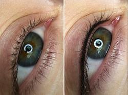 EyeLiner - Before & After