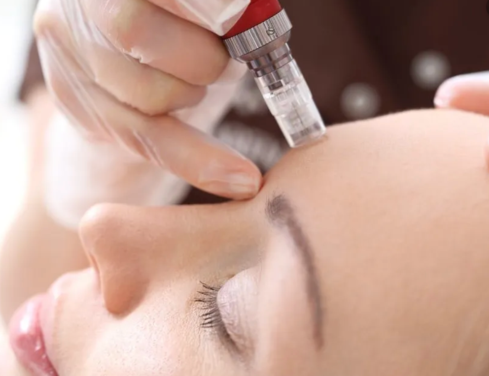 Microinfusion Facial
