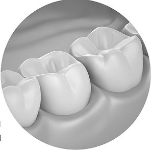 tooth colored resin composite fillings