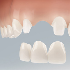 Dental Illustration 3D