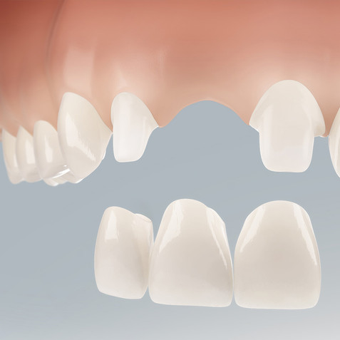 Dental Illustration 3D