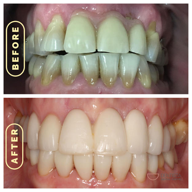 Implants and Veneers