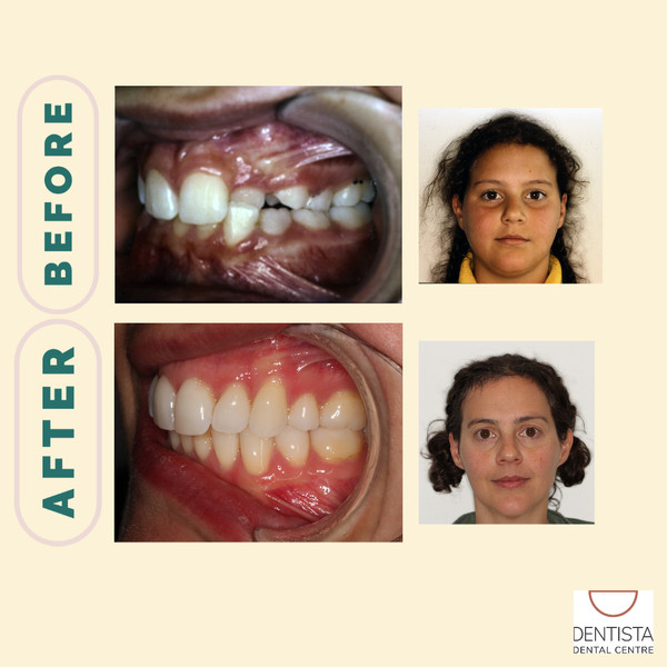 Dr Carla before and after smile side view