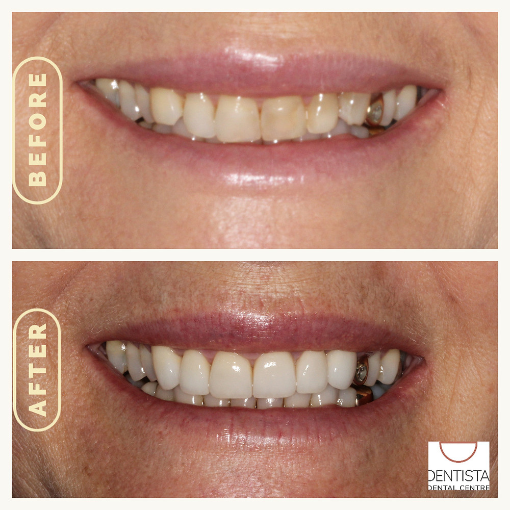 patient of Dr Carla with dental veneers. Before and after image how dental veneers can improve a smile
