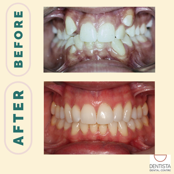 Dr Carla before and after smile
