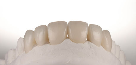 crowns and veneers in porcelain