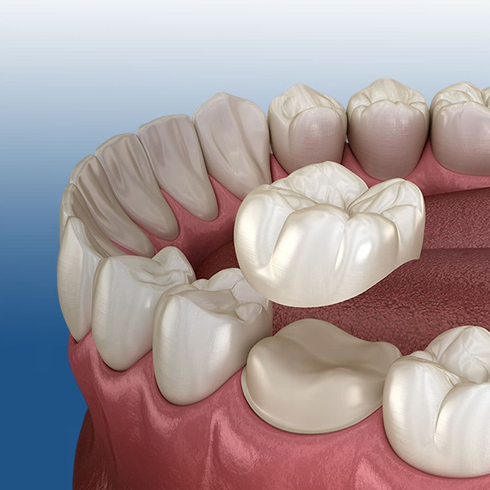 A dental crown is shown that has been placed on a ground down tooth