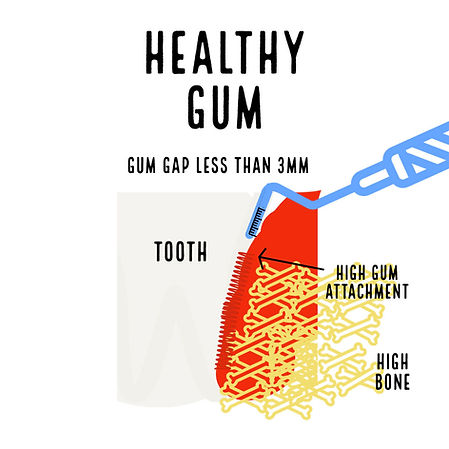 Healthy Gum