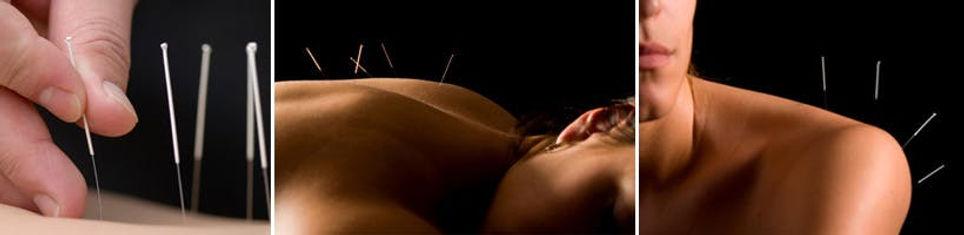 dry-needling-1.jpg