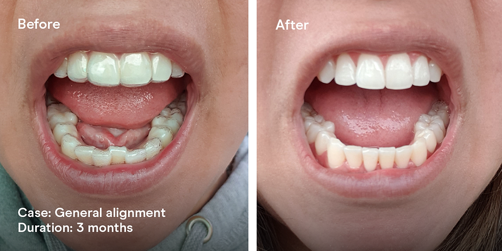 WonderSmile Clear Aligners for Crooked Teeth Before & After