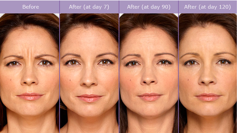 SCG-Skin-Before-After-from-Botox-Alecia.