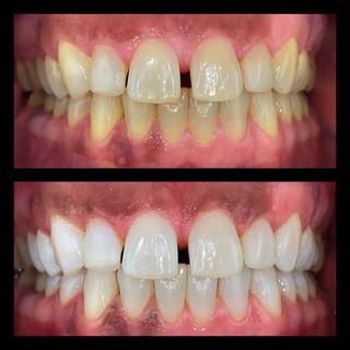 Ejemplo de blanquemaiento dental