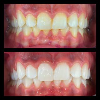 Ejemplo de blanqueamiento dental